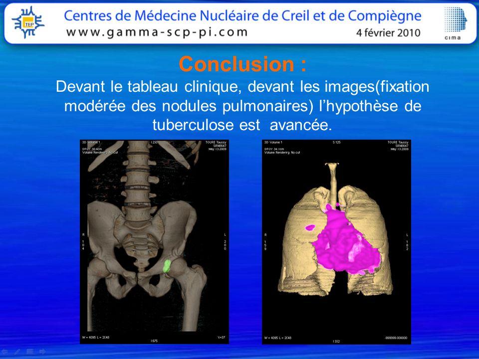 Conclusion : Devant le tableau clinique, devant les images(fixation modérée des nodules pulmonaires) lhypothèse de tuberculose est avancée.