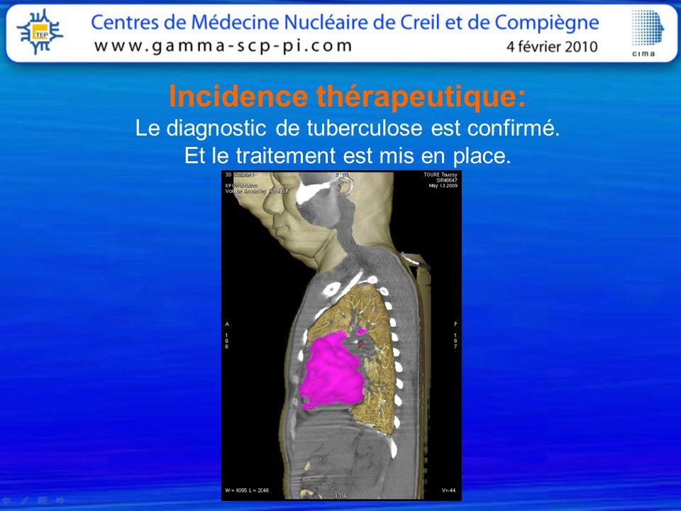 Incidence thérapeutique: Le diagnostic de tuberculose est confirmé. Et le traitement est mis en place.