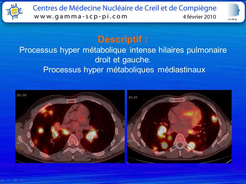 Descriptif : Processus hyper métabolique intense hilaires pulmonaire droit et gauche. Processus hyper métaboliques médiastinaux