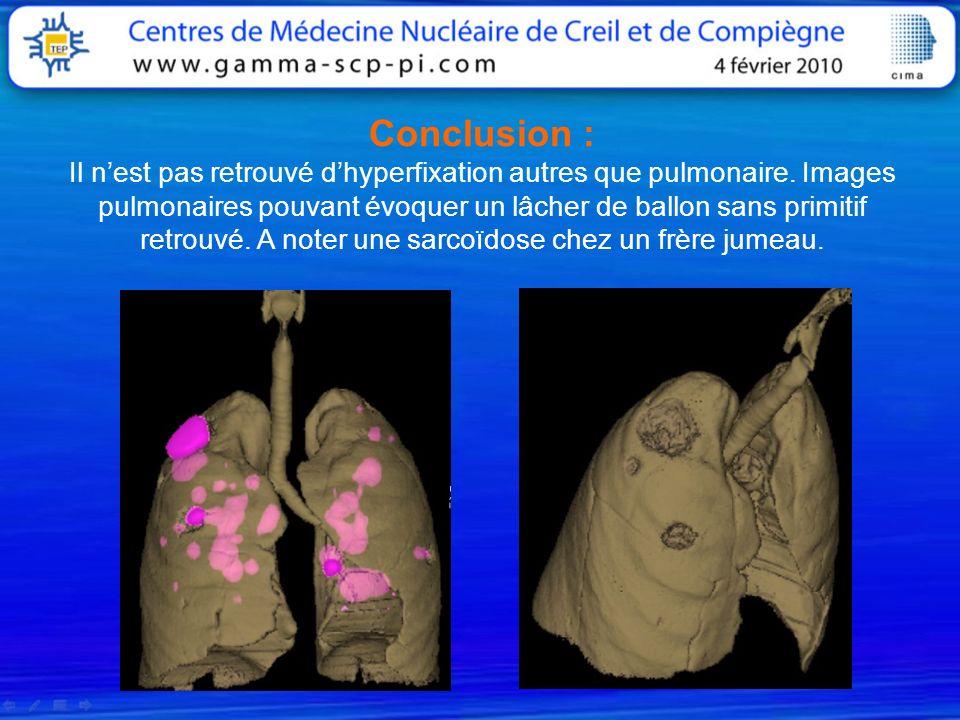 Conclusion : Il nest pas retrouvé dhyperfixation autres que pulmonaire. Images pulmonaires pouvant évoquer un lâcher de ballon sans primitif retrouvé.