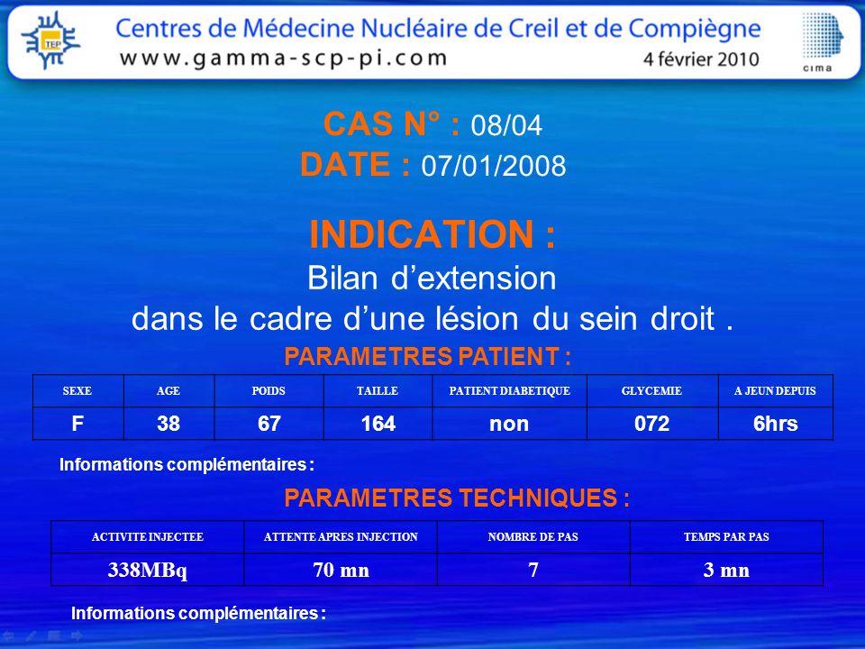CAS N° : 08/04 DATE : 07/01/2008 INDICATION : Bilan dextension dans le cadre dune lésion du sein droit. PARAMETRES PATIENT : SEXEAGEPOIDSTAILLEPATIENT