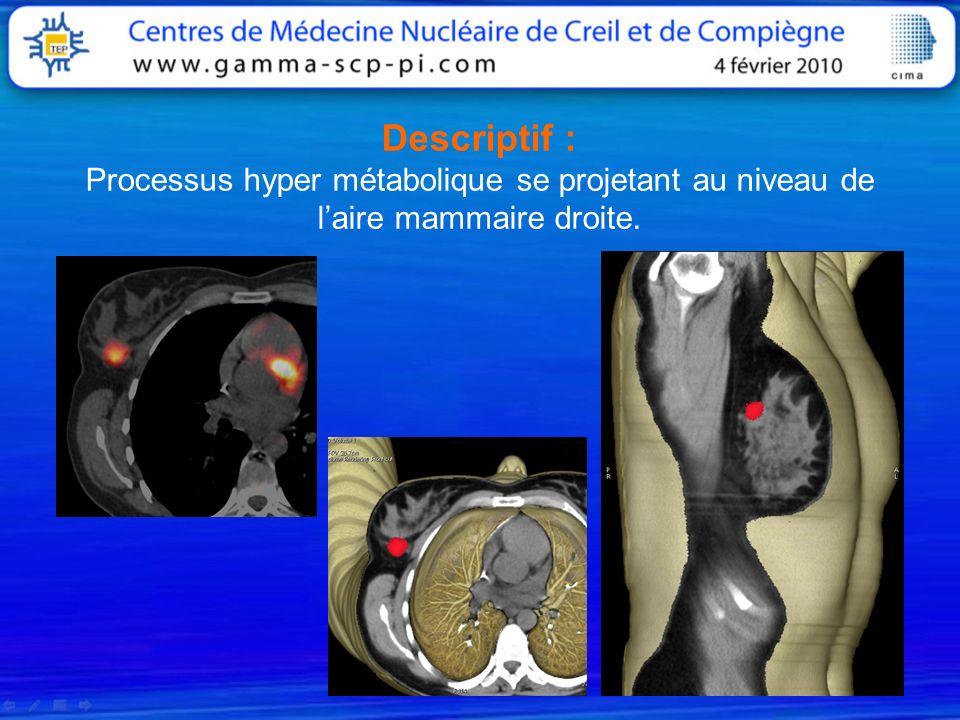 Descriptif : Processus hyper métabolique se projetant au niveau de laire mammaire droite.