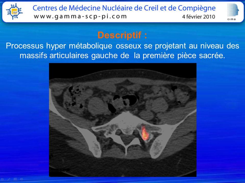 Descriptif : Processus hyper métabolique osseux se projetant au niveau des massifs articulaires gauche de la première pièce sacrée.