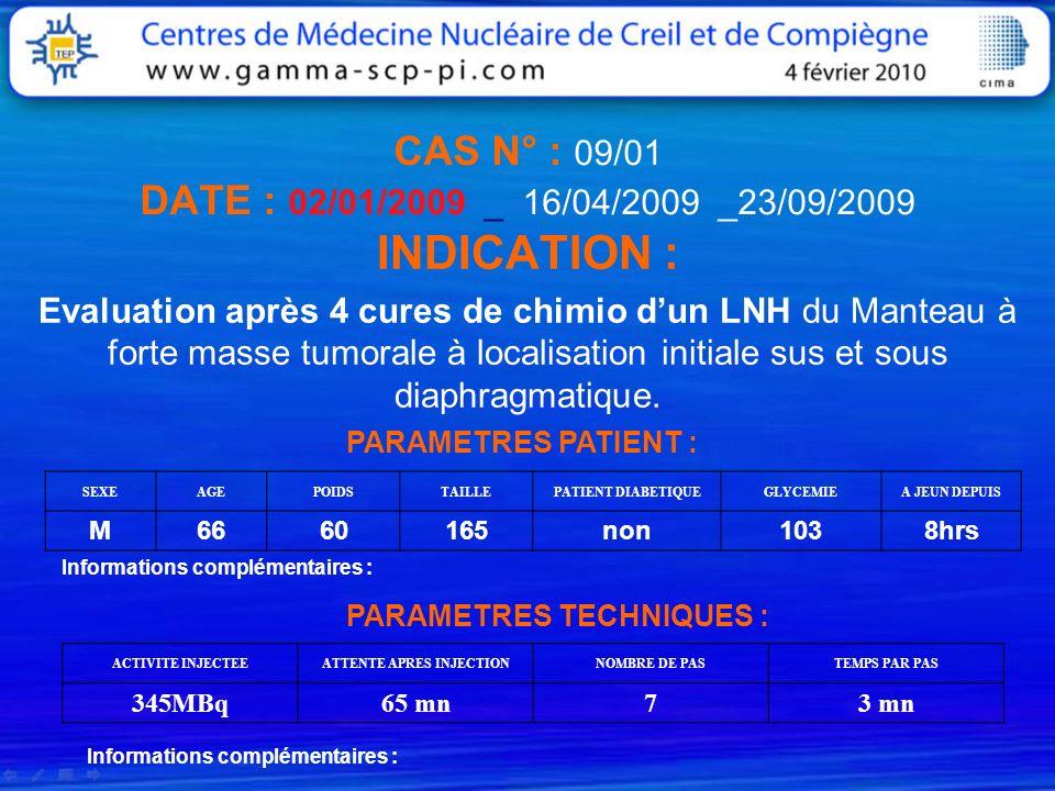 CAS N° : 09/01 DATE : 02/01/2009 _ 16/04/2009 _23/09/2009 INDICATION : Evaluation après 4 cures de chimio dun LNH du Manteau à forte masse tumorale à