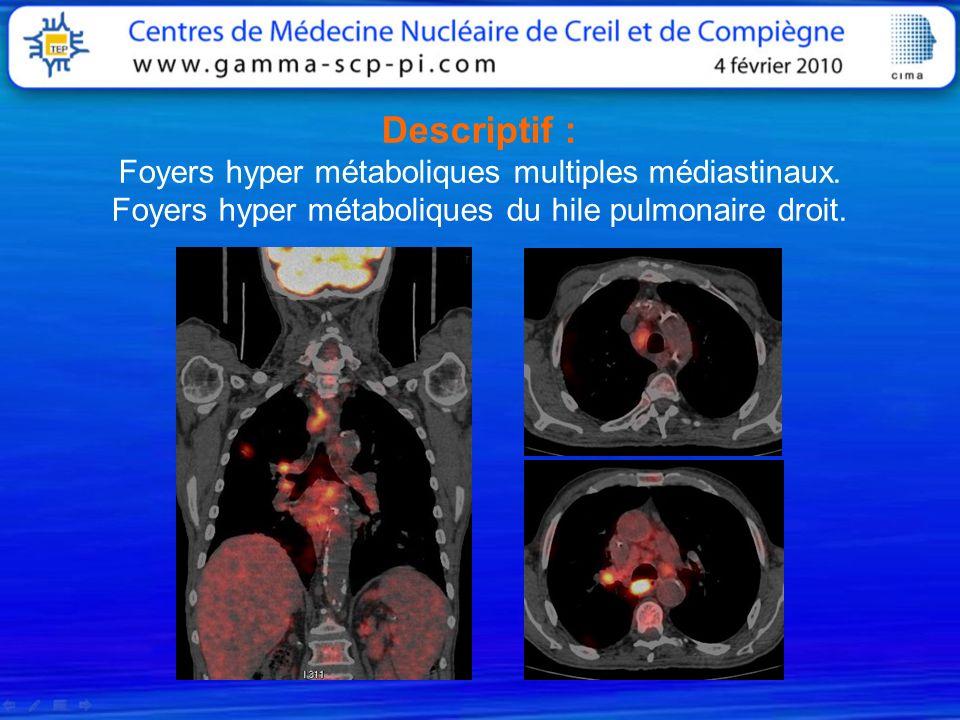 Descriptif : Foyers hyper métaboliques multiples médiastinaux. Foyers hyper métaboliques du hile pulmonaire droit.