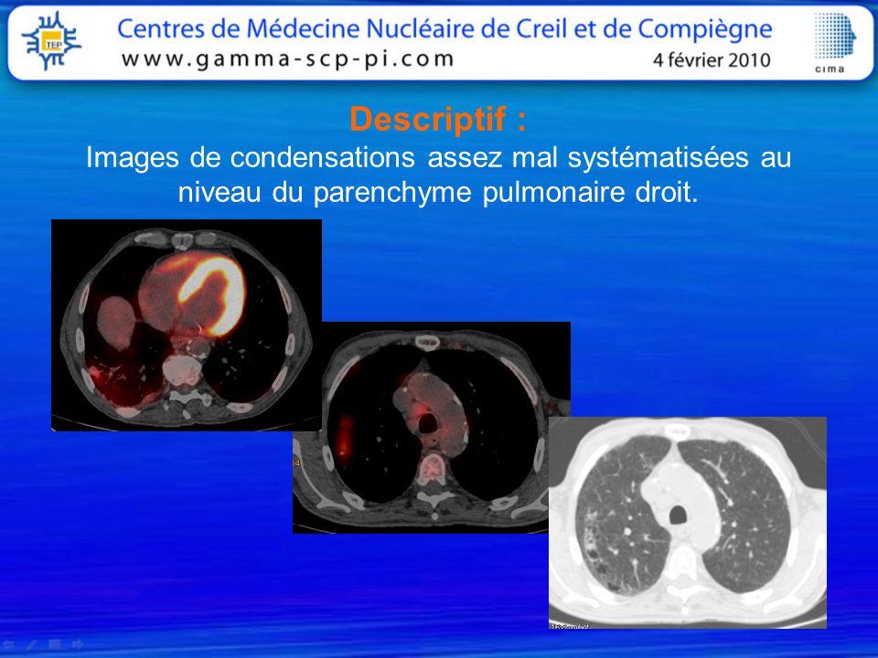 Descriptif : Images de condensations assez mal systématisées au niveau du parenchyme pulmonaire droit.