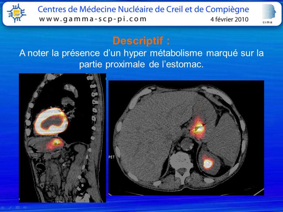 Descriptif : A noter la présence dun hyper métabolisme marqué sur la partie proximale de lestomac.