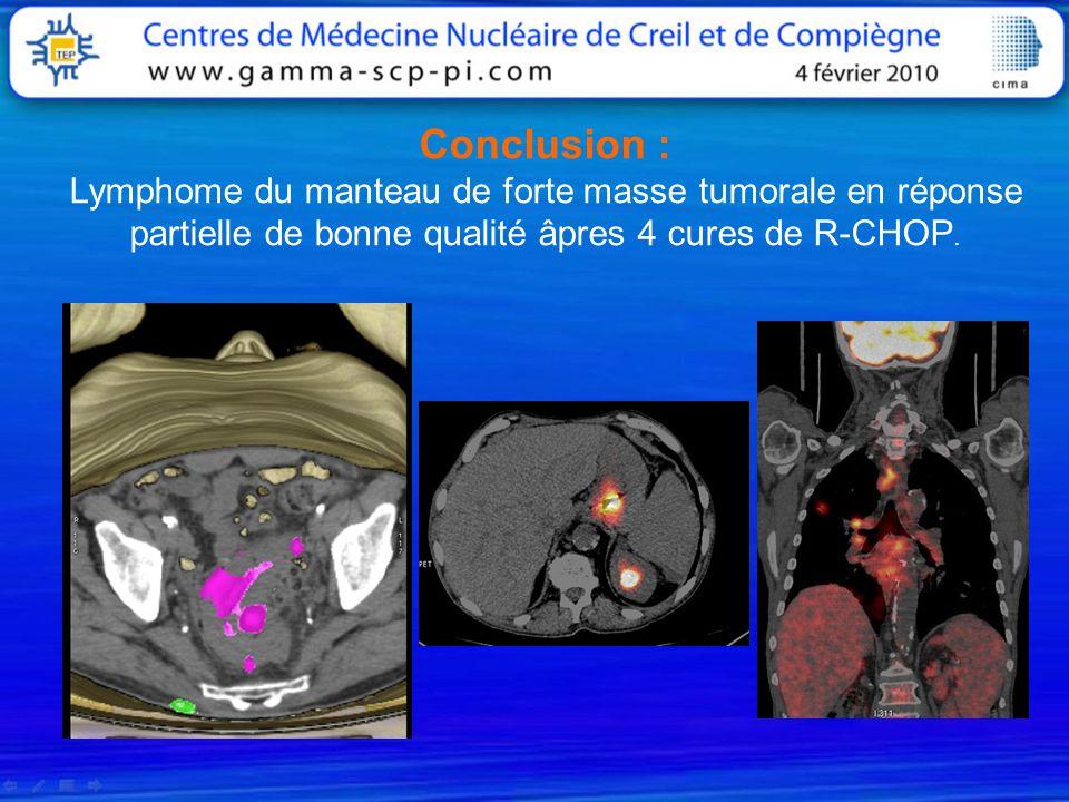 Conclusion : Lymphome du manteau de forte masse tumorale en réponse partielle de bonne qualité âpres 4 cures de R-CHOP.