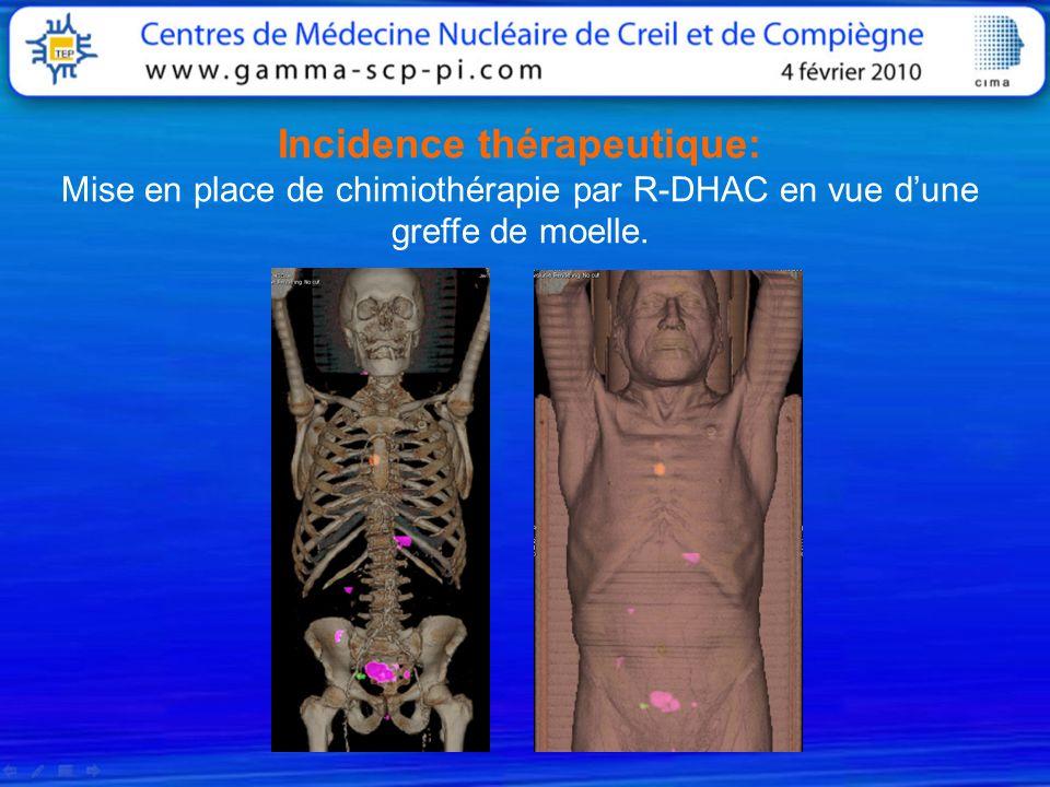 Incidence thérapeutique: Mise en place de chimiothérapie par R-DHAC en vue dune greffe de moelle.