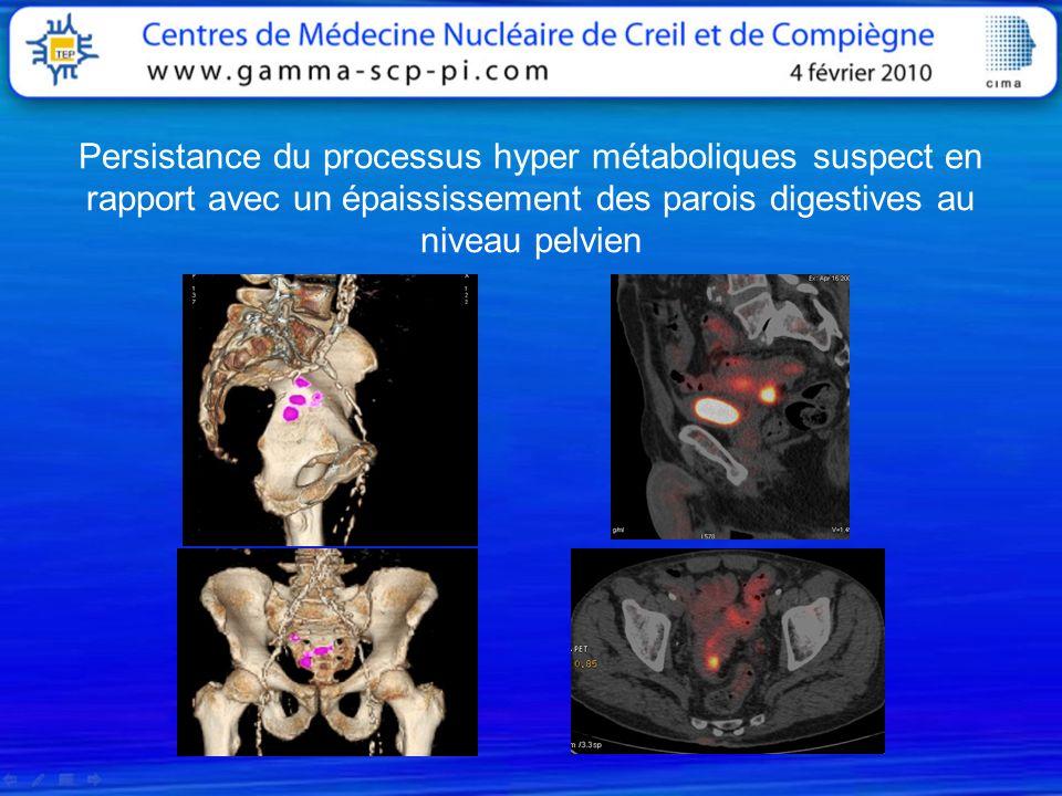 Persistance du processus hyper métaboliques suspect en rapport avec un épaississement des parois digestives au niveau pelvien
