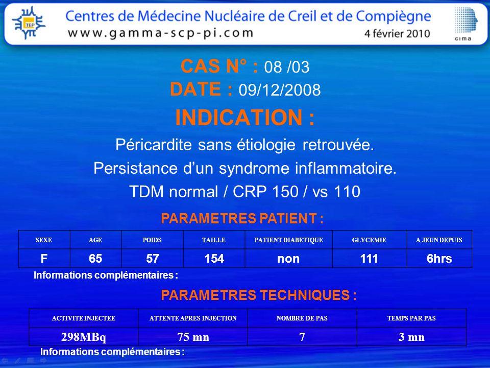 CAS N° : 08 /03 DATE : 09/12/2008 INDICATION : Péricardite sans étiologie retrouvée. Persistance dun syndrome inflammatoire. TDM normal / CRP 150 / vs