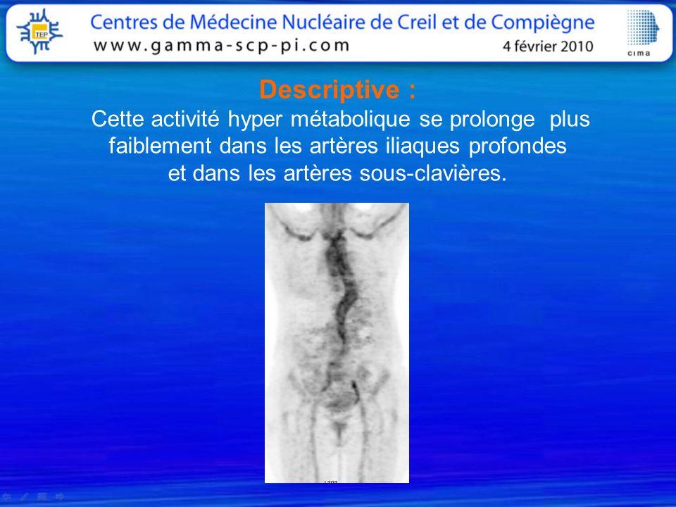Descriptive : Cette activité hyper métabolique se prolonge plus faiblement dans les artères iliaques profondes et dans les artères sous-clavières.