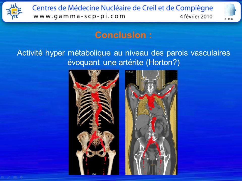 Conclusion : Activité hyper métabolique au niveau des parois vasculaires évoquant une artérite (Horton?)