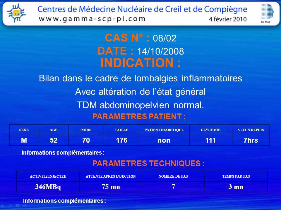 CAS N° : 08/02 DATE : 14/10/2008 INDICATION : Bilan dans le cadre de lombalgies inflammatoires Avec altération de létat général TDM abdominopelvien no