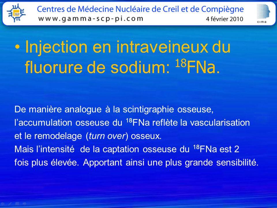 Injection en intraveineux du fluorure de sodium: 18 FNa. De manière analogue à la scintigraphie osseuse, laccumulation osseuse du 18 FNa reflète la va