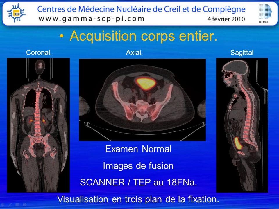 Acquisition corps entier. Examen Normal Images de fusion SCANNER / TEP au 18FNa. Visualisation en trois plan de la fixation. Coronal. Axial. Sagittal