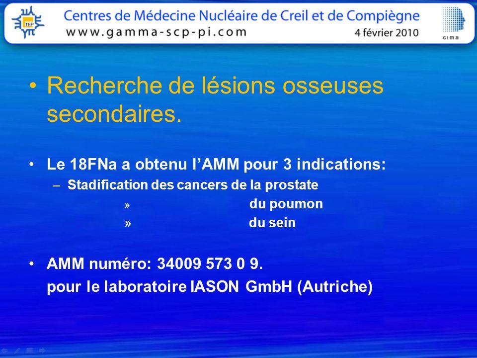 Recherche de lésions osseuses secondaires. Le 18FNa a obtenu lAMM pour 3 indications: –Stadification des cancers de la prostate » du poumon » du sein