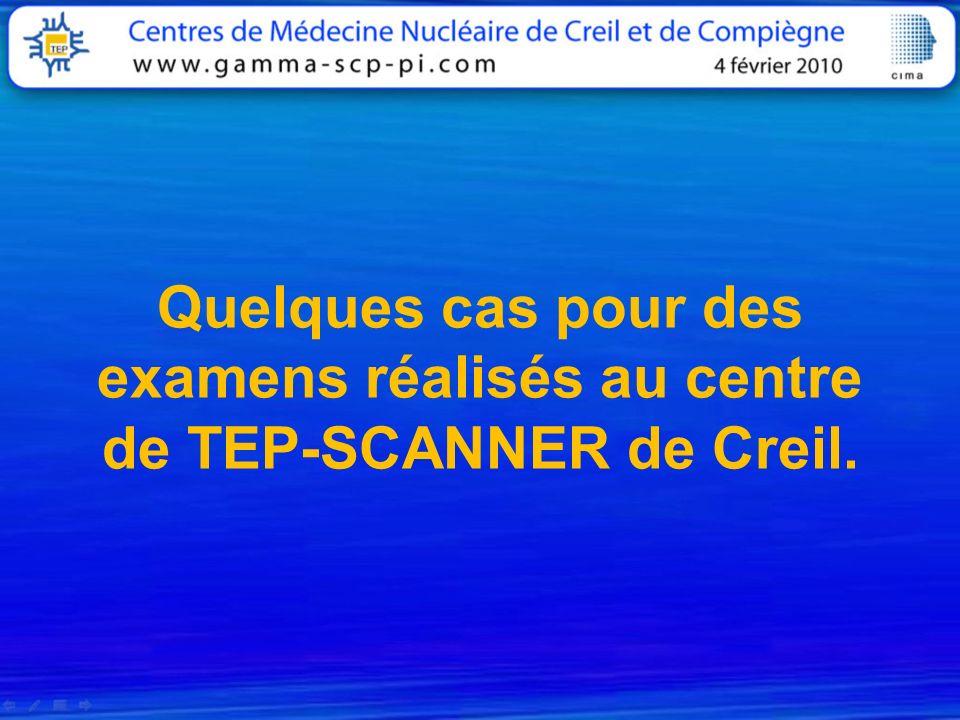 Quelques cas pour des examens réalisés au centre de TEP-SCANNER de Creil.