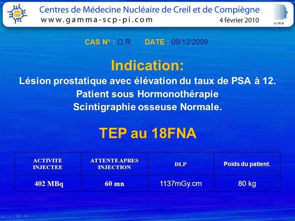 CAS N° : O.R. DATE : 09/12/2009 Indication: Lésion prostatique avec élévation du taux de PSA à 12. Patient sous Hormonothérapie Scintigraphie osseuse