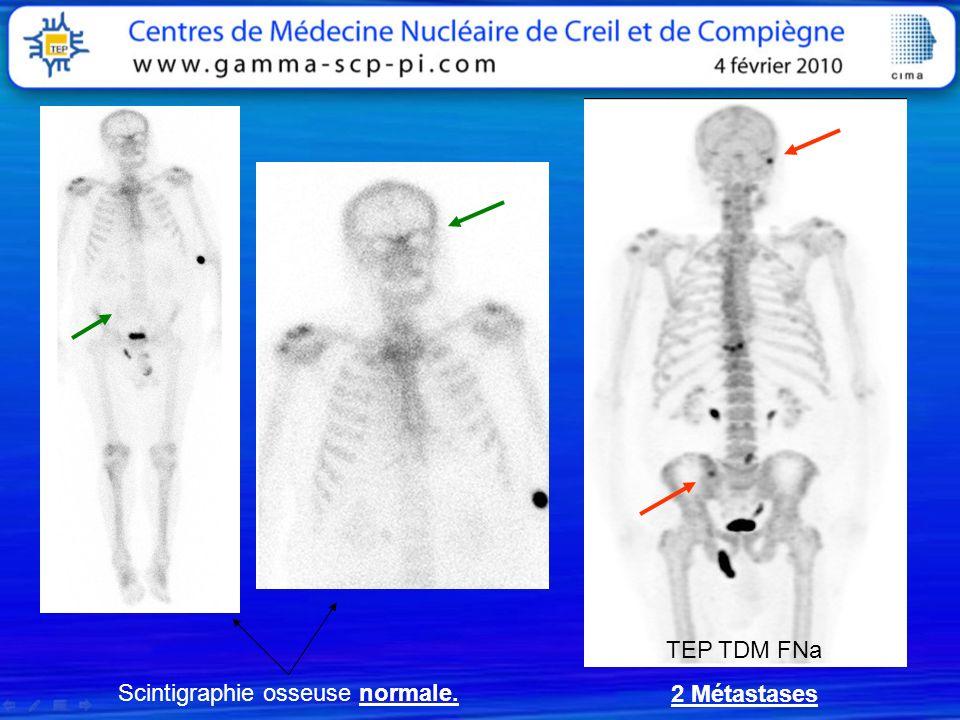 Scintigraphie osseuse normale. TEP TDM FNa 2 Métastases