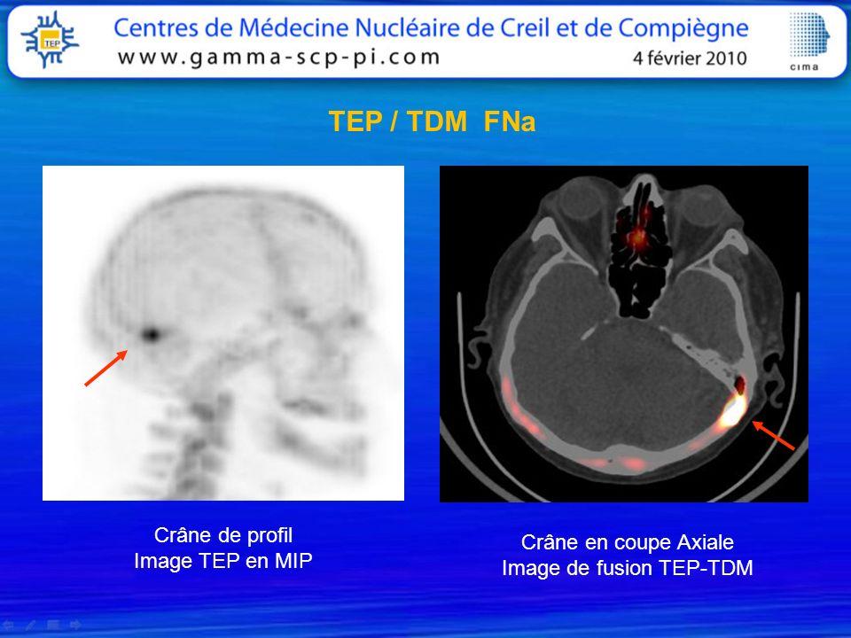 Crâne de profil Image TEP en MIP Crâne en coupe Axiale Image de fusion TEP-TDM TEP / TDM FNa
