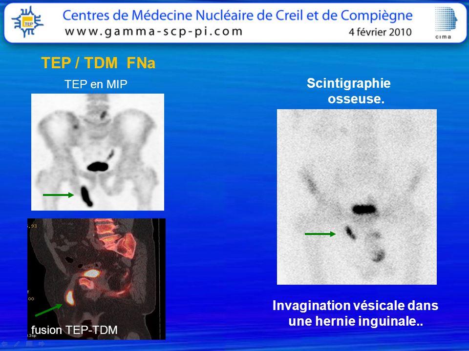 TEP en MIP fusion TEP-TDM TEP / TDM FNa Scintigraphie osseuse. Invagination vésicale dans une hernie inguinale..