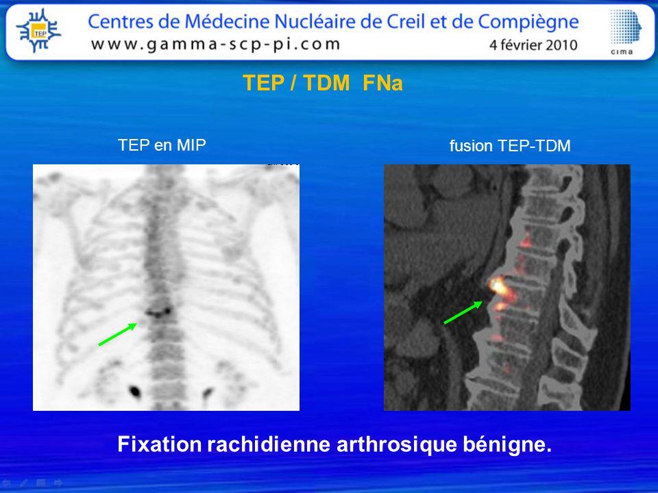 TEP / TDM FNa TEP en MIP fusion TEP-TDM Fixation rachidienne arthrosique bénigne.