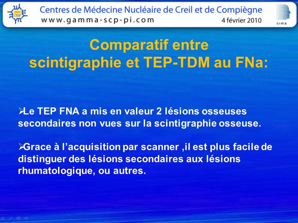 Comparatif entre scintigraphie et TEP-TDM au FNa: Le TEP FNA a mis en valeur 2 lésions osseuses secondaires non vues sur la scintigraphie osseuse. Gra