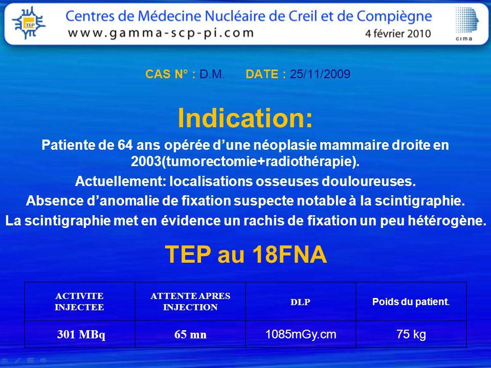 CAS N° : D.M. DATE : 25/11/2009 Indication: Patiente de 64 ans opérée dune néoplasie mammaire droite en 2003(tumorectomie+radiothérapie). Actuellement