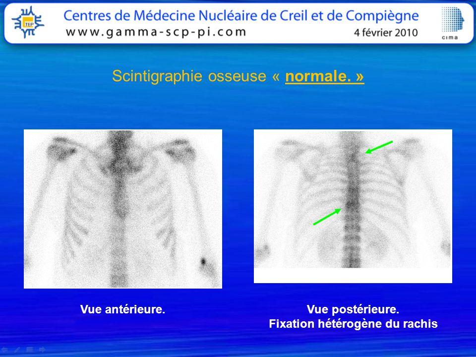 Scintigraphie osseuse « normale. » Vue antérieure.Vue postérieure. Fixation hétérogène du rachis