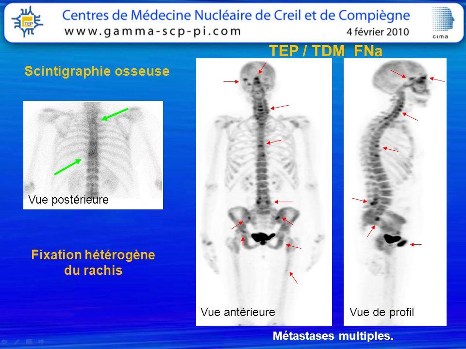 Fixation hétérogène du rachis Métastases multiples. Vue postérieure Vue antérieureVue de profil TEP / TDM FNa Scintigraphie osseuse