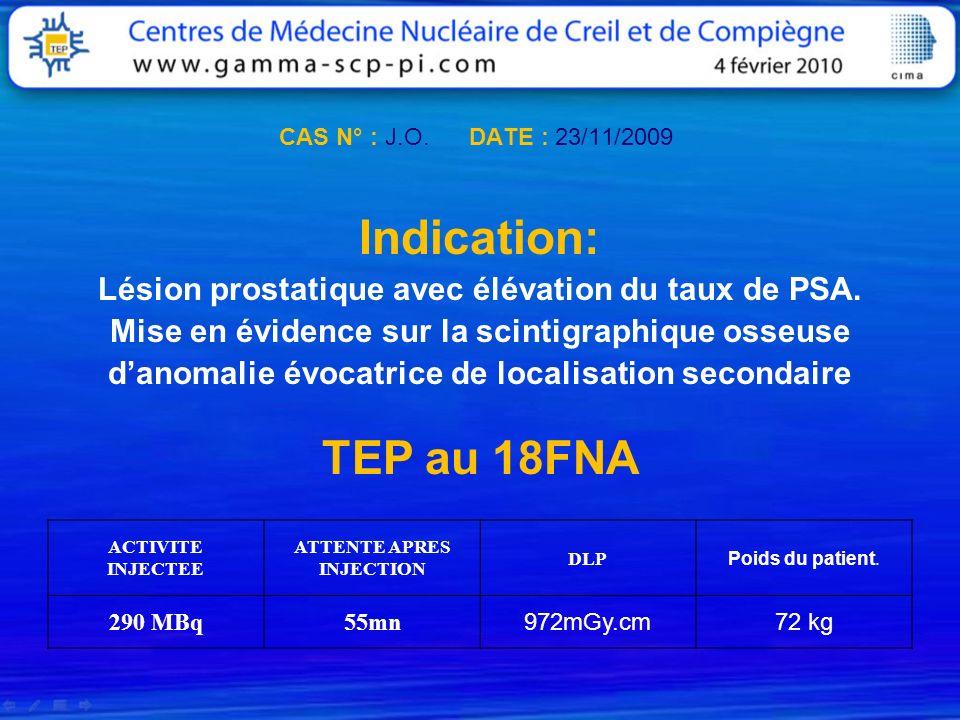 CAS N° : J.O. DATE : 23/11/2009 Indication: Lésion prostatique avec élévation du taux de PSA. Mise en évidence sur la scintigraphique osseuse danomali