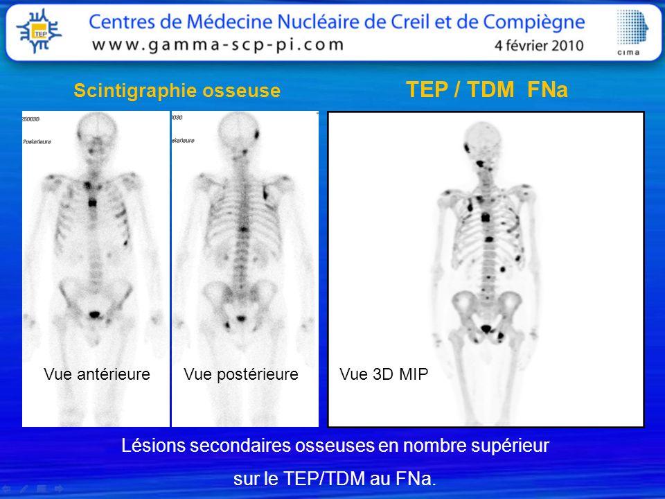 Lésions secondaires osseuses en nombre supérieur sur le TEP/TDM au FNa. Vue postérieureVue antérieureVue 3D MIP TEP / TDM FNa Scintigraphie osseuse