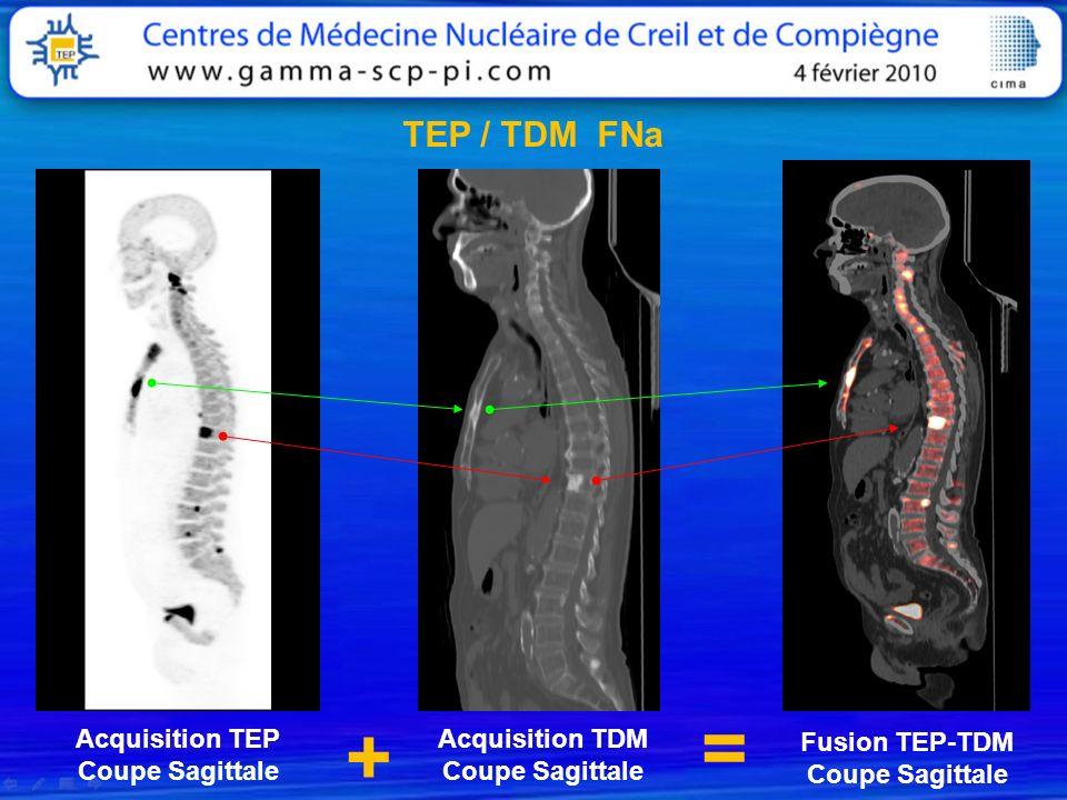 Acquisition TEP Coupe Sagittale Acquisition TDM Coupe Sagittale Fusion TEP-TDM Coupe Sagittale + = TEP / TDM FNa