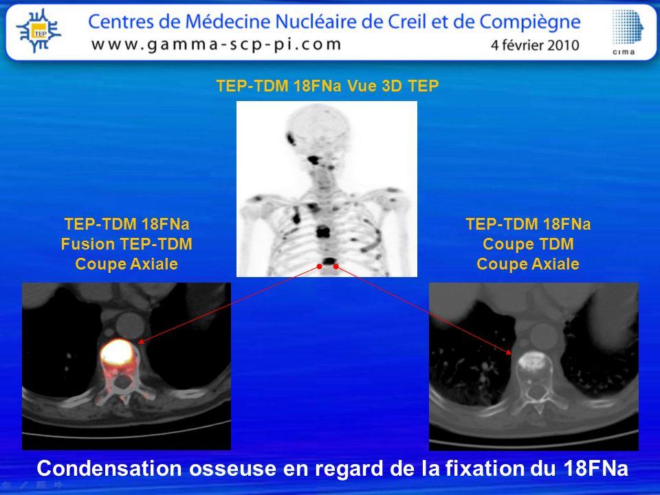 TEP-TDM 18FNa Fusion TEP-TDM Coupe Axiale TEP-TDM 18FNa Coupe TDM Coupe Axiale TEP-TDM 18FNa Vue 3D TEP Condensation osseuse en regard de la fixation