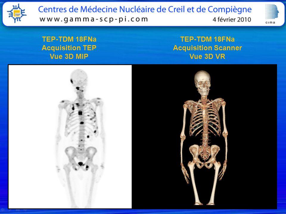 TEP-TDM 18FNa Acquisition TEP Vue 3D MIP TEP-TDM 18FNa Acquisition Scanner Vue 3D VR