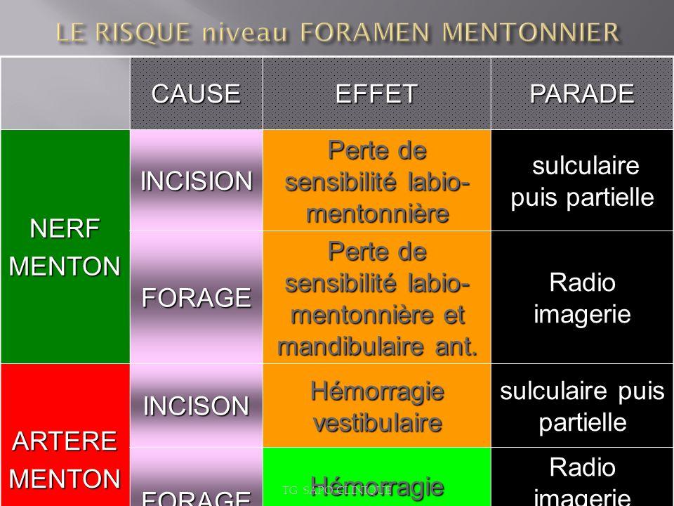 CAUSEEFFETPARADENERFMENTONINCISION Perte de sensibilité labio- mentonnière sulculaire puis partielle sulculaire puis partielle FORAGE Perte de sensibi