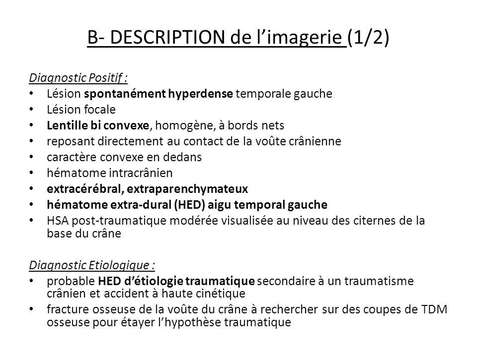 B- DESCRIPTION de limagerie (1/2) Diagnostic Positif : Lésion spontanément hyperdense temporale gauche Lésion focale Lentille bi convexe, homogène, à