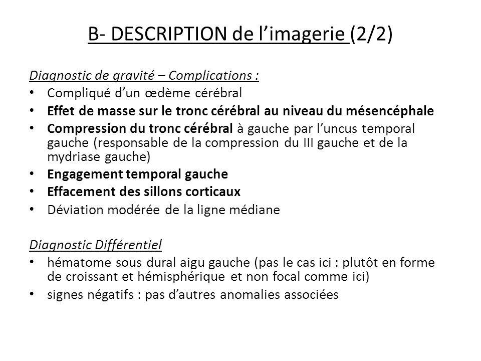B- DESCRIPTION de limagerie (2/2) Diagnostic de gravité – Complications : Compliqué dun œdème cérébral Effet de masse sur le tronc cérébral au niveau