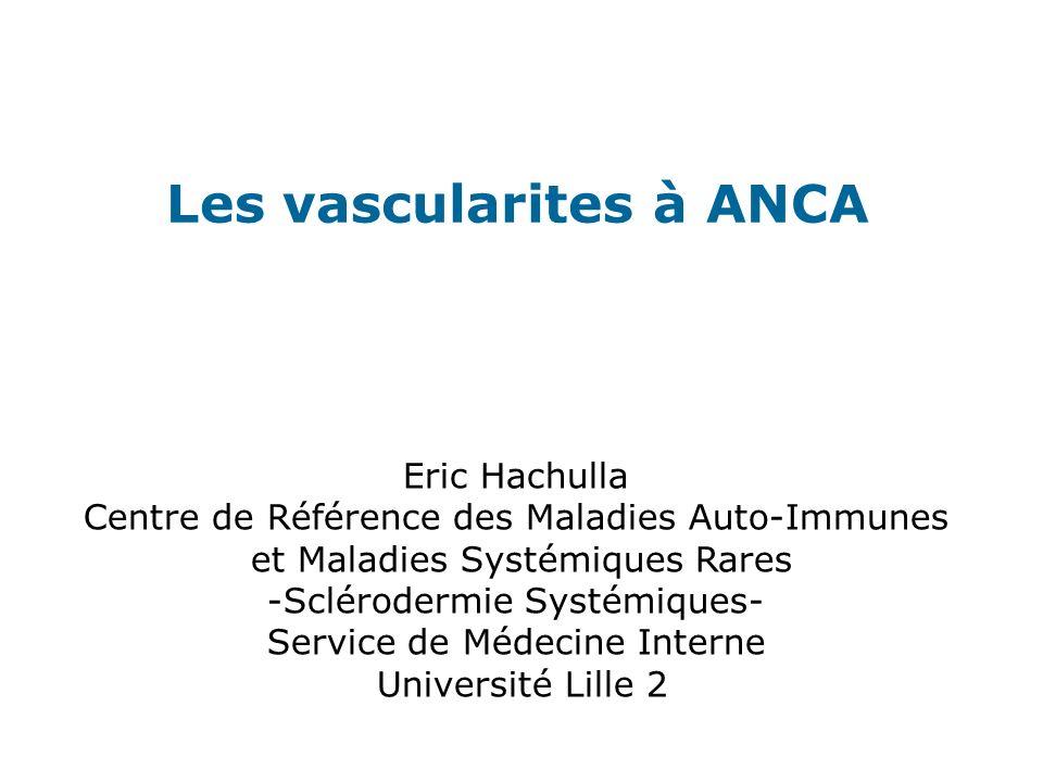 Les vascularites à ANCA Eric Hachulla Centre de Référence des Maladies Auto-Immunes et Maladies Systémiques Rares -Sclérodermie Systémiques- Service d