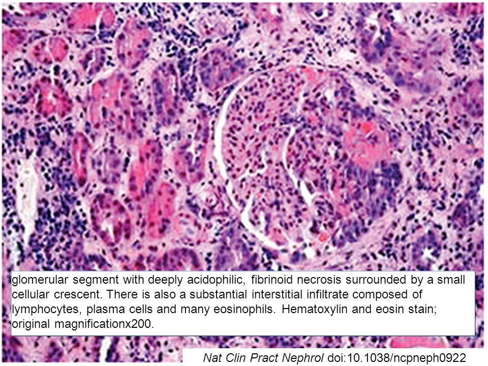 glomerular segment with deeply acidophilic, fibrinoid necrosis surrounded by a small cellular crescent. There is also a substantial interstitial infil