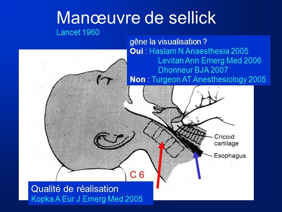 Manœuvre de sellick Lancet 1960 C 6 gêne la visualisation ? Oui : Haslam N Anaesthesia 2005 Levitan Ann Emerg Med 2006 Dhonneur BJA 2007 Non : Turgeon