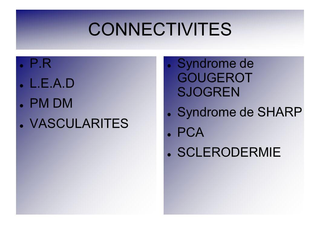 CONNECTIVITES P.R L.E.A.D PM DM VASCULARITES Syndrome de GOUGEROT SJOGREN Syndrome de SHARP PCA SCLERODERMIE