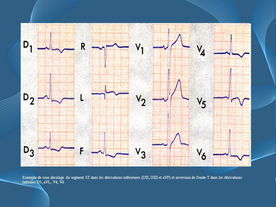 Exemple de sous-décalage du segment ST dans les dérivations inférieures (DII, DIII et aVF) et inversion de l onde T dans les dérivations latérales D1, aVL, V4, V6