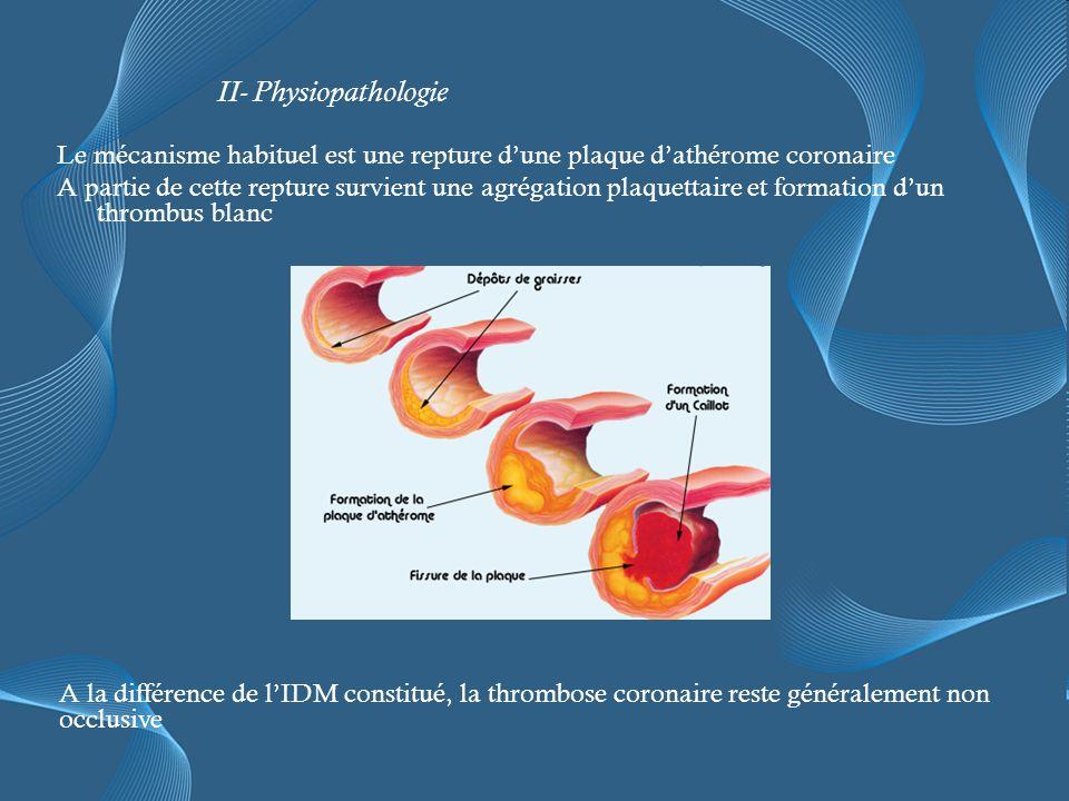 Le mécanisme habituel est une repture dune plaque dathérome coronaire A partie de cette repture survient une agrégation plaquettaire et formation dun thrombus blanc II- Physiopathologie A la différence de lIDM constitué, la thrombose coronaire reste généralement non occlusive