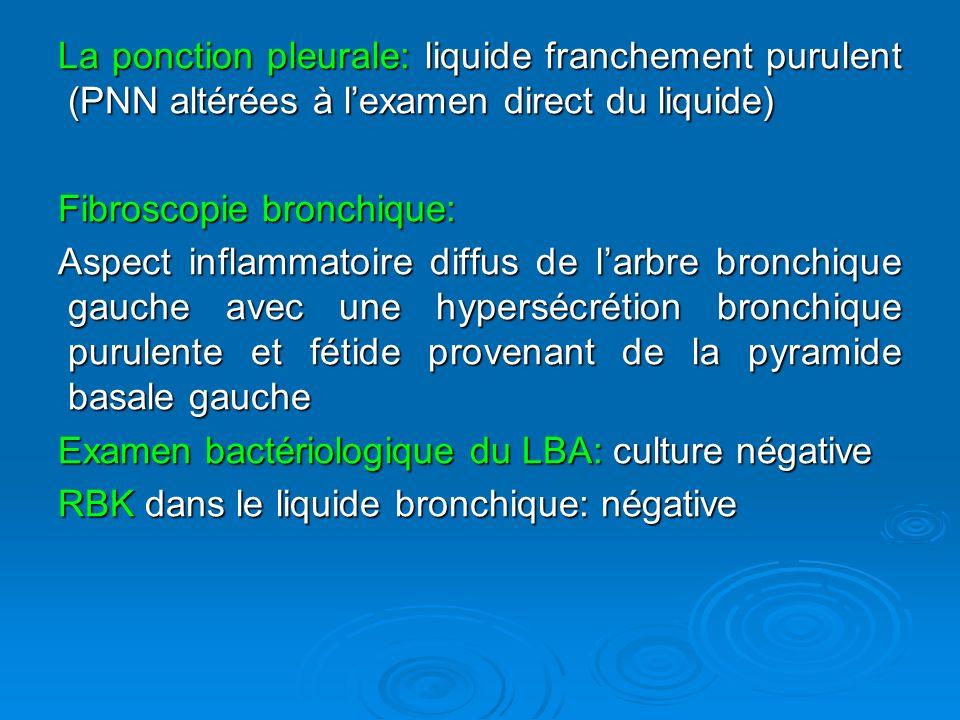 La ponction pleurale: liquide franchement purulent (PNN altérées à lexamen direct du liquide) Fibroscopie bronchique: Aspect inflammatoire diffus de larbre bronchique gauche avec une hypersécrétion bronchique purulente et fétide provenant de la pyramide basale gauche Examen bactériologique du LBA: culture négative RBK dans le liquide bronchique: négative