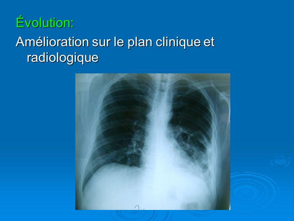 Évolution: Amélioration sur le plan clinique et radiologique