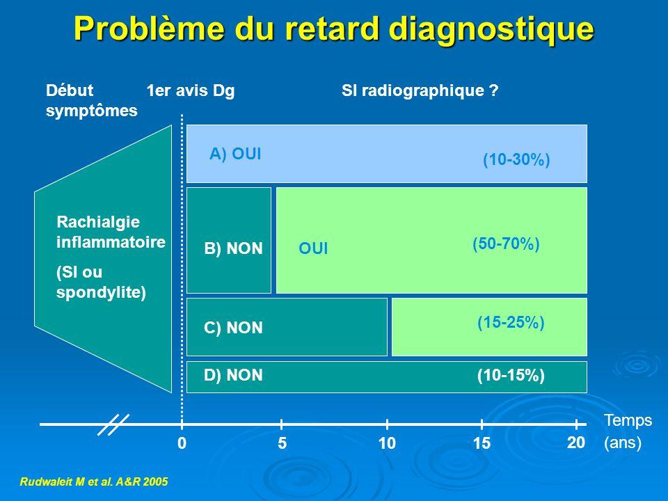 Problème du retard diagnostique Rachialgie inflammatoire (SI ou spondylite) A) OUI (10-30%) B) NONOUI (50-70%) (15-25%) (10-15%) C) NON D) NON 051015
