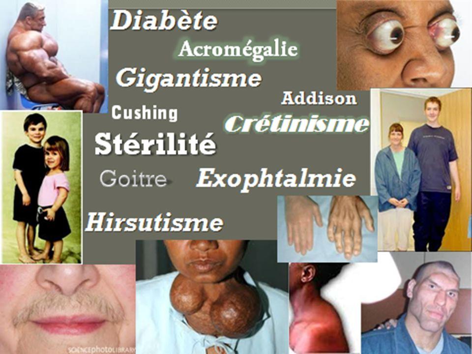 Croyez-vous que les désordres endocriniens sont uniquement causés par des pathologies? 2