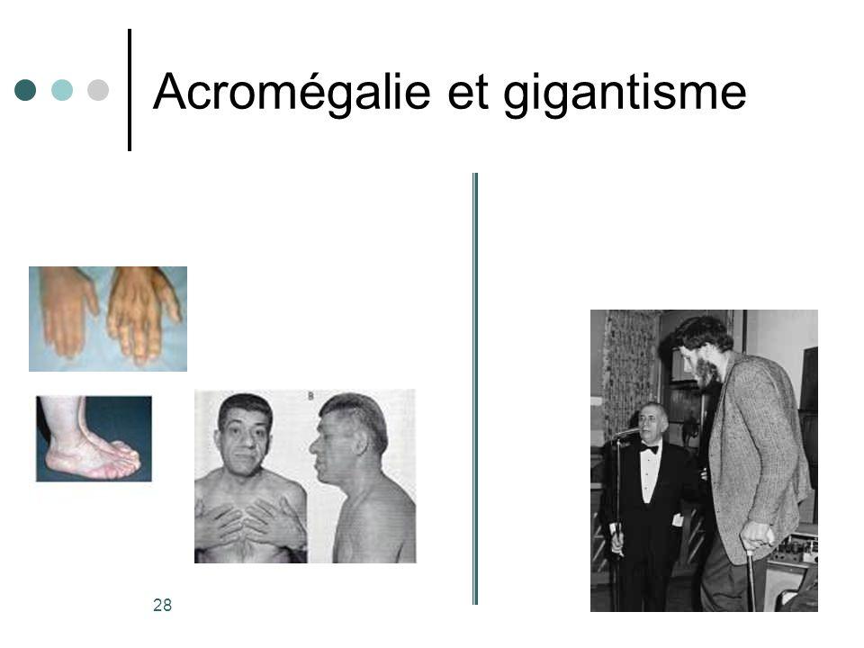 28 Acromégalie et gigantisme